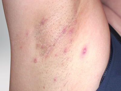 Hidradenitis suppurativa on armpit: Stage 2 (moderate)