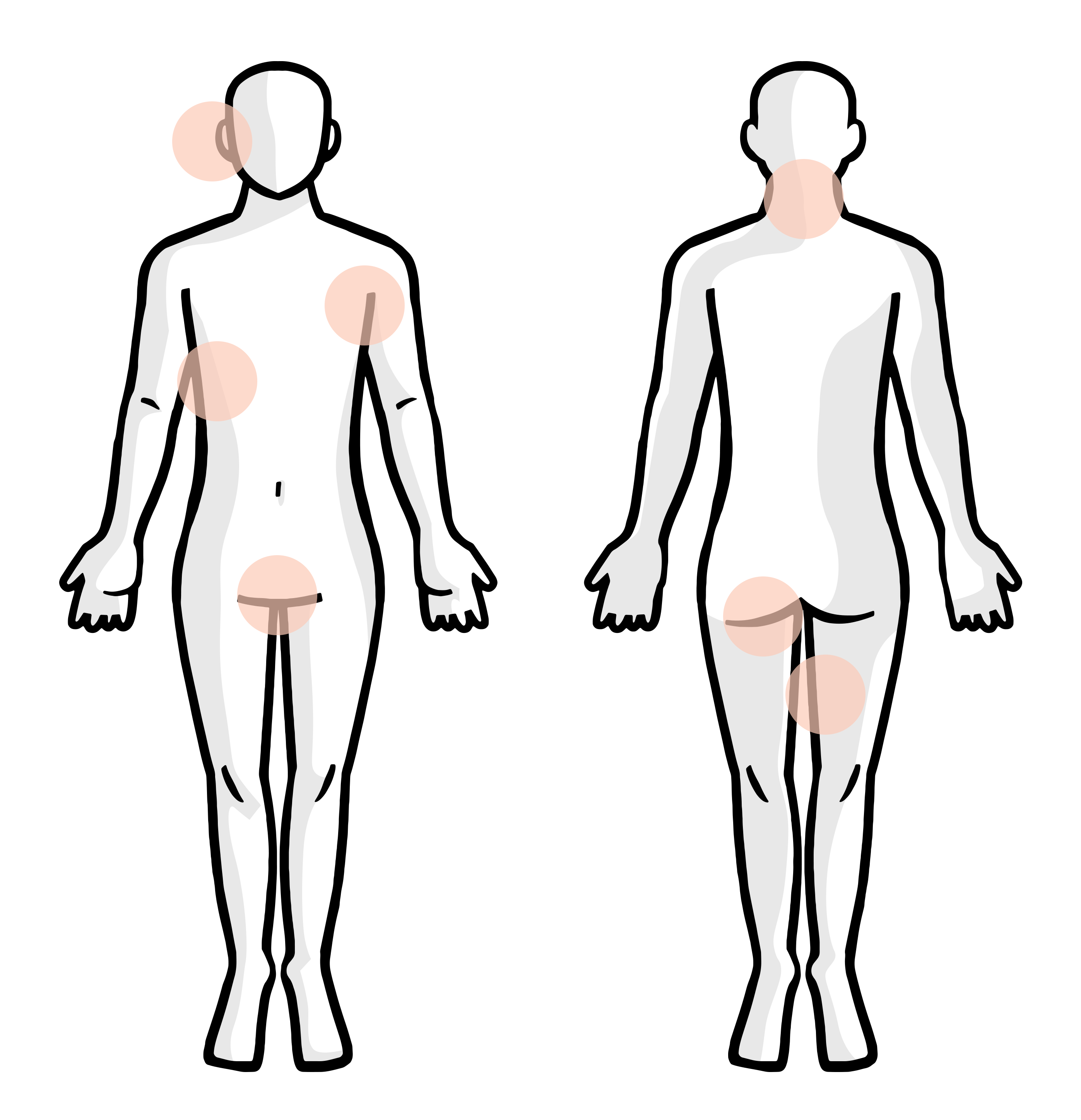 Illustration of a body with highlights on areas affected by hidradenitis suppurativa