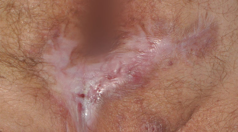 Hidradenitis suppurativa buttocks: Stage 3 (severe)