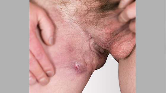 Hidradenitis suppurativa groin: Stage 2 (moderate)