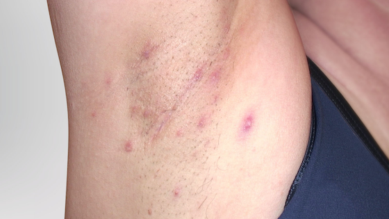 Hidradenitis suppurativa armpit: Stage 2 (moderate)