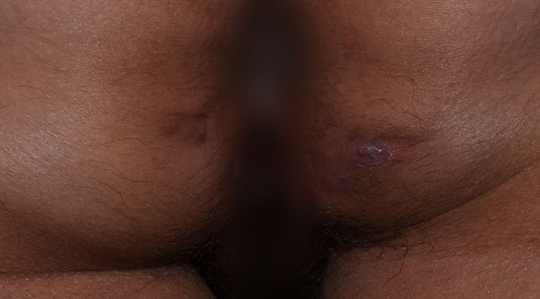 Hidradenitis suppurativa buttocks: Stage 1 (mild)